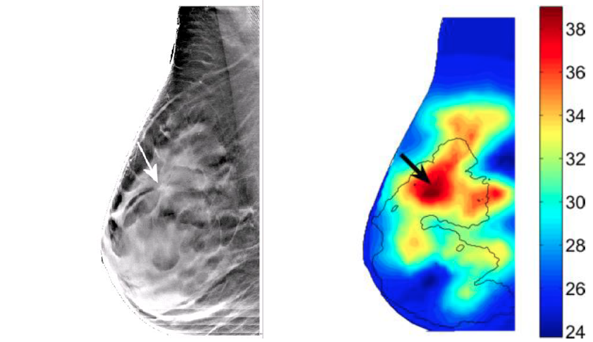 scatter radiation digital tomosynthesis breast Furthermore, this newly developed technology will reduce doses of radiation via the addition of tomosynthesis abstract 1 introduction tomosynthesis is coming into use across the world as studies are indicating its efficacy in breast cancer exami- nation1) ~ 6) tomosynthesis captures images of a subject at different.