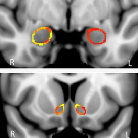 In these cross-sectional MR images, taken at different points within the brain, the red and yellow coloring indicates that grey matter density in the left nucleus accumbens – a region involved with reward and motivated behavior – is significantly greater in recreational marijuana users than in non-users. (Reprinted with permission: GILMAN, et al. The Journal of Neuroscience 2014.)